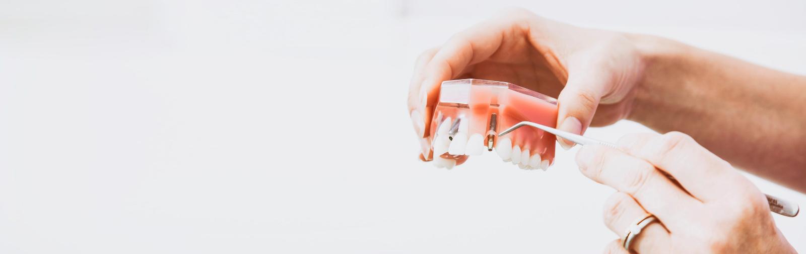 Dental Clinic Group - Implantología