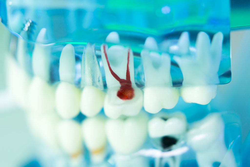 Endodoncias, Clínica dental en Huétor Tájar, Baena, Jódar, Alcaudete