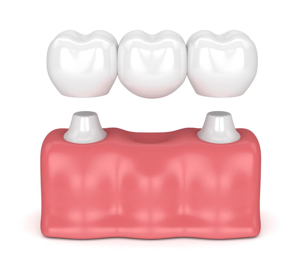 puente dental, baena, jódar, huétor, alcaudete
