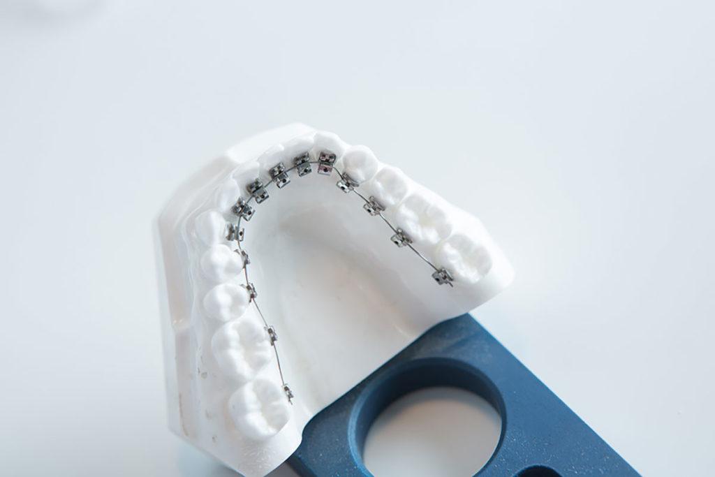 brackets lingual, ortodoncia invisible, Clínica dental en Baena, Alcaudete, Jódar, Huétor Tájar