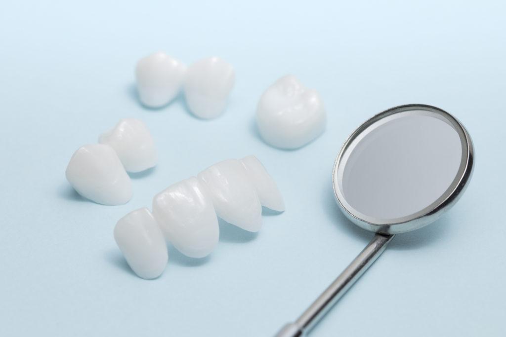 porcelana, clínica dental en Alcaudete, Jódar, Baena, Huétor Tájar