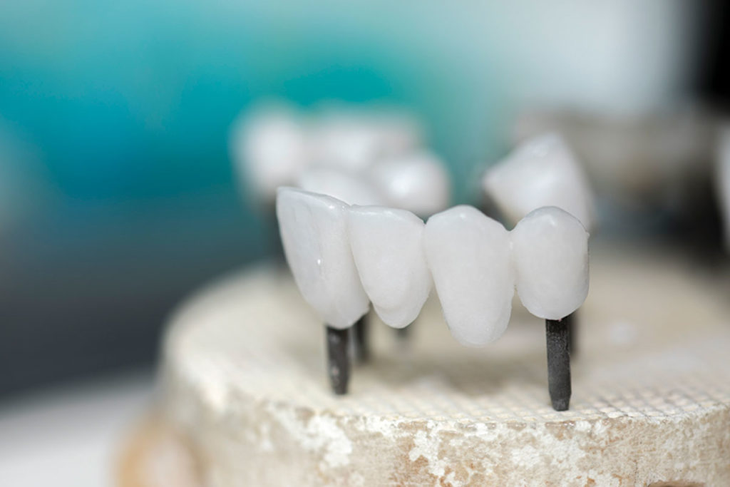 prótesis de zirconio, clínica dental en Jódar, Baena, Huétor Tájar, Alcaudete